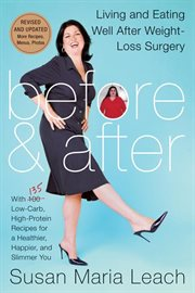 Before & after : living and eating well after weight-loss surgery cover image
