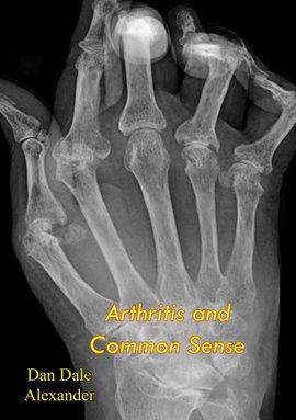 Cover image for Arthritis and Common Sense
