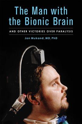 The man with the bionic brain ebook by jon mukand md phd the man with the bionic brain fandeluxe PDF
