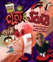 Clot & Scab