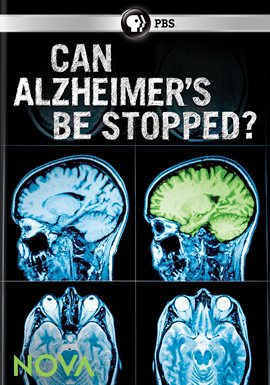 Cover image for Can Alzheimer's Be Stopped?