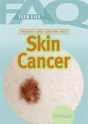 Frequently asked questions about skin cancer cover image